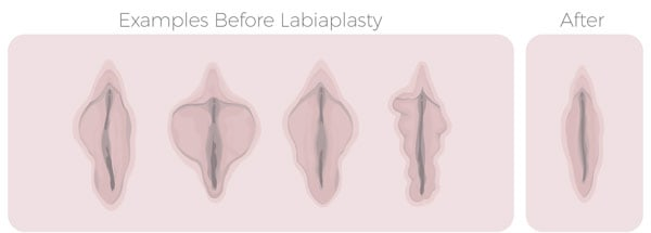 Labiaplasty Before and After Image